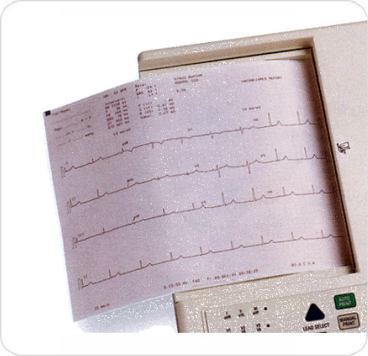 ECG Paper Fanfold Schiller AT-2 and AT-2 Plus